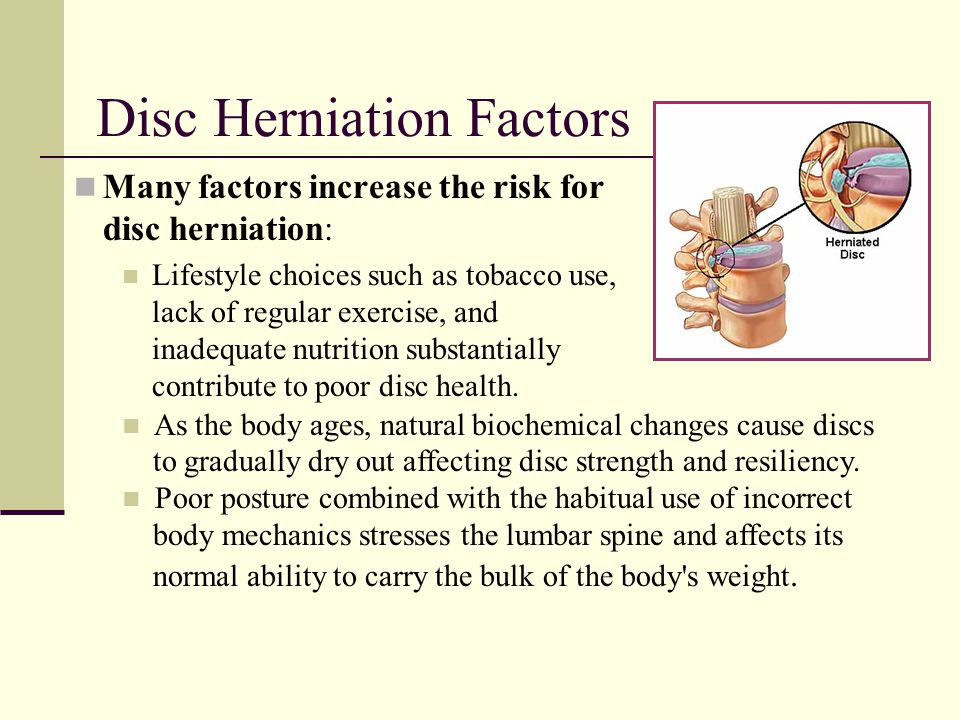 Disc Herniation Factors