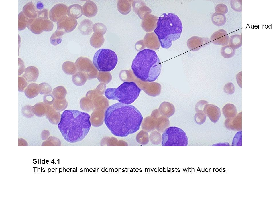 Auer rod Slide 4.1 This peripheral smear demonstrates myeloblasts with Auer rods.