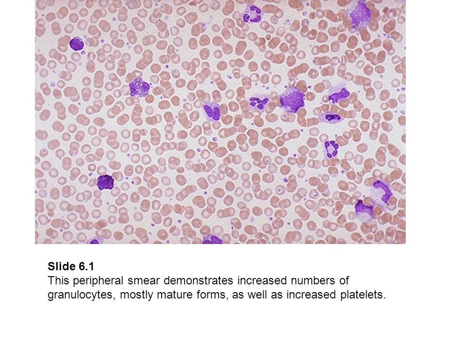 Slide 6.1 This peripheral smear demonstrates increased numbers of granulocytes, mostly mature forms, as well as increased platelets.