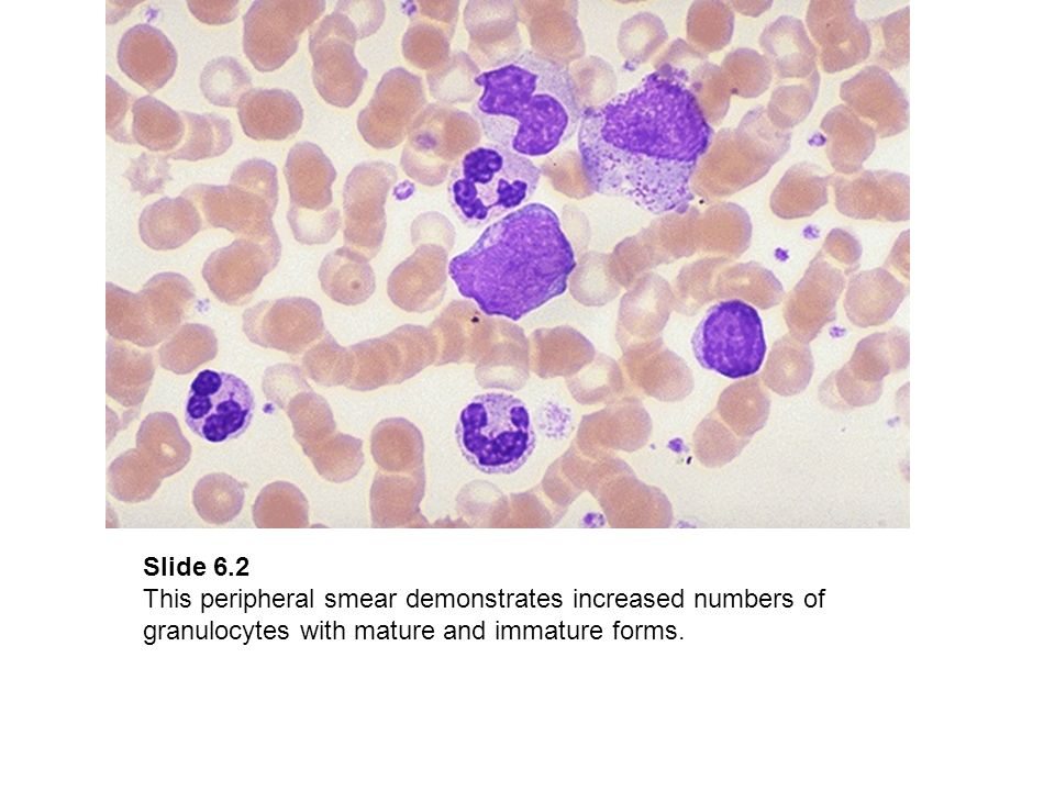 Slide 6.2 This peripheral smear demonstrates increased numbers of granulocytes with mature and immature forms.