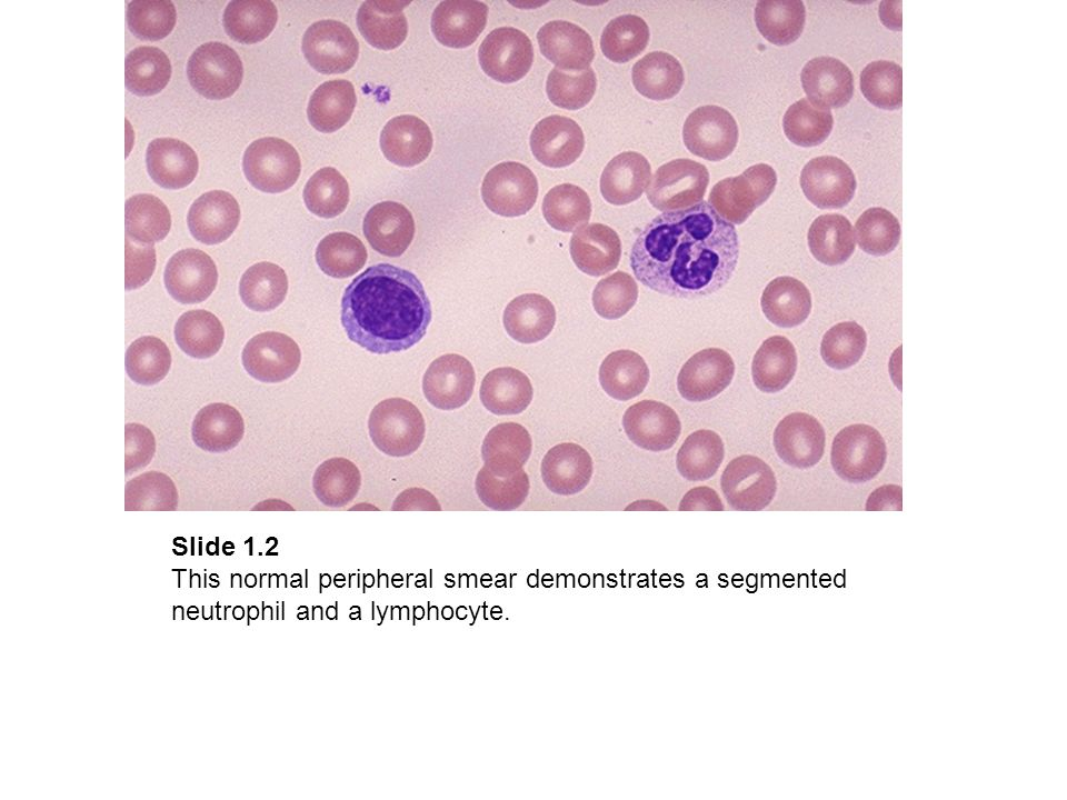 Slide 1.2 This normal peripheral smear demonstrates a segmented neutrophil and a lymphocyte.