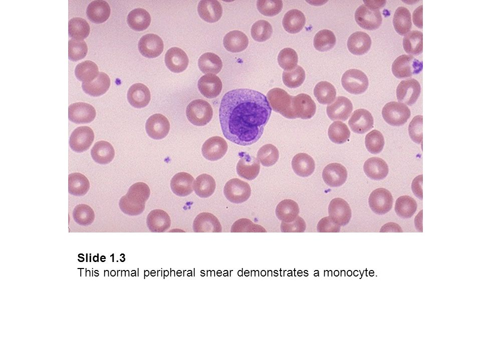Slide 1.3 This normal peripheral smear demonstrates a monocyte.