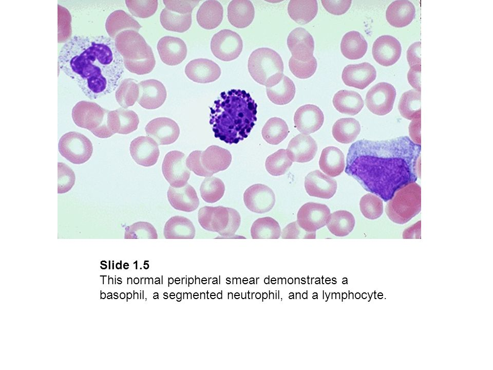 Slide 1.5 This normal peripheral smear demonstrates a basophil, a segmented neutrophil, and a lymphocyte.