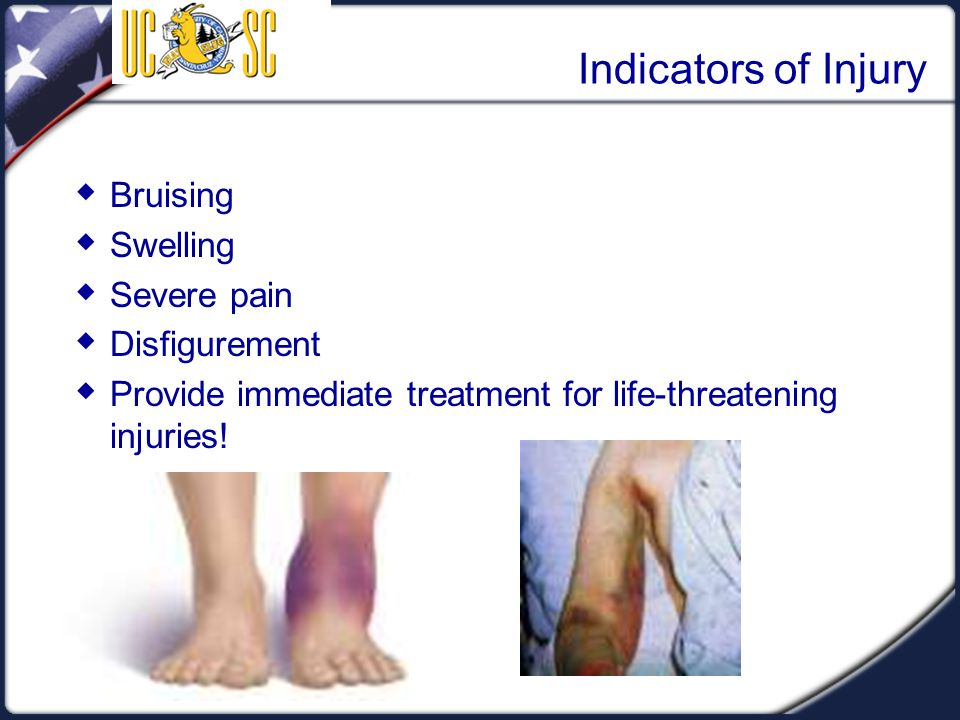 Indicators of Injury Bruising Swelling Severe pain Disfigurement