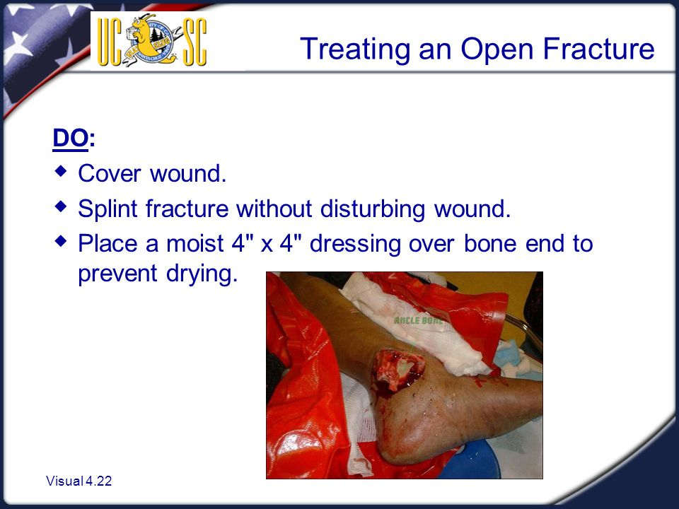 Treating an Open Fracture