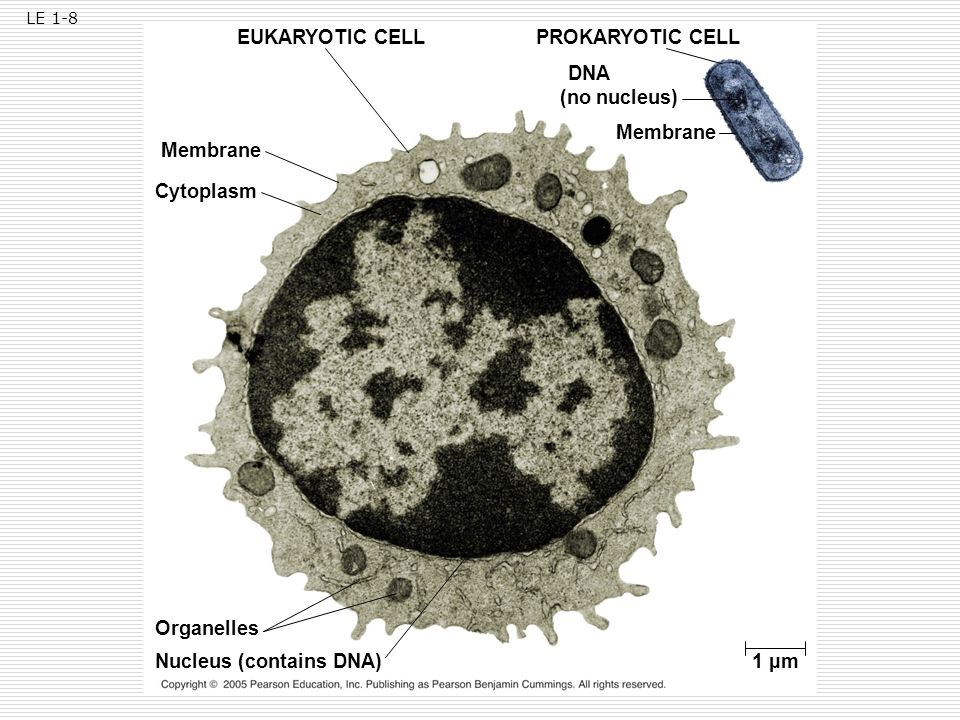Nucleus (contains DNA) 1 µm