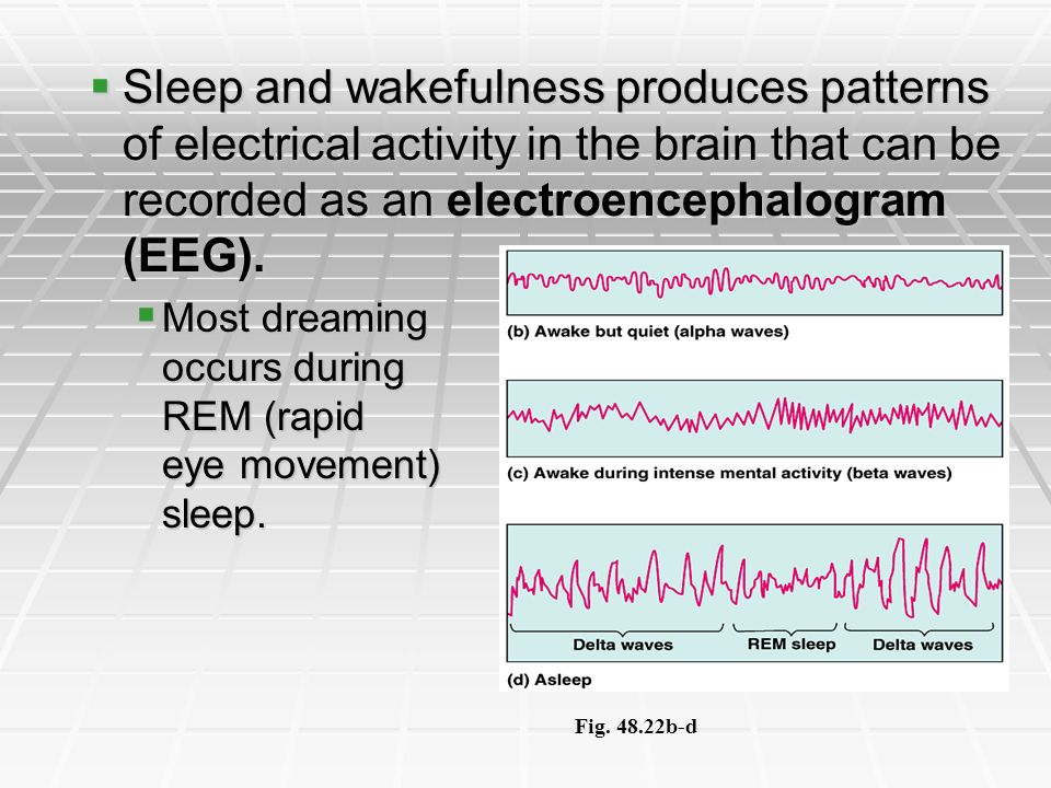 Sleep and wakefulness produces patterns of electrical activity in the brain that can be recorded as an electroencephalogram (EEG).