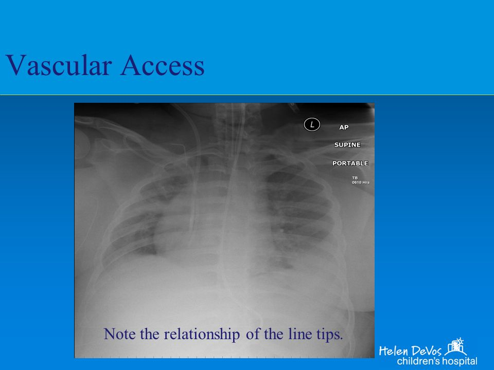 Vascular Access Note the relationship of the line tips.