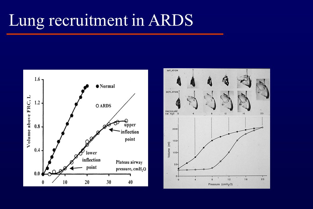 Lung recruitment in ARDS