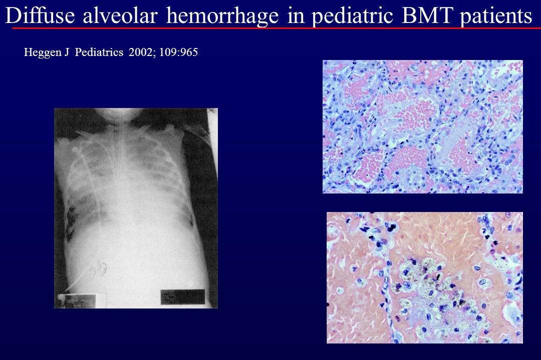 Diffuse alveolar hemorrhage in pediatric BMT patients