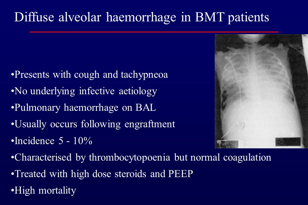 Diffuse alveolar haemorrhage in BMT patients