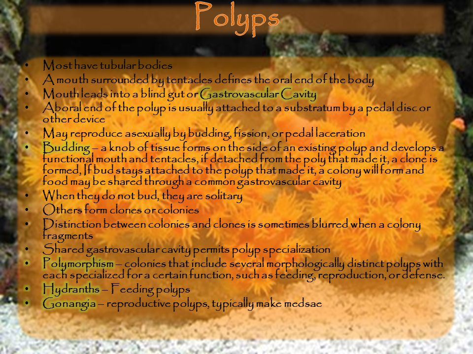 Polyps Most have tubular bodies