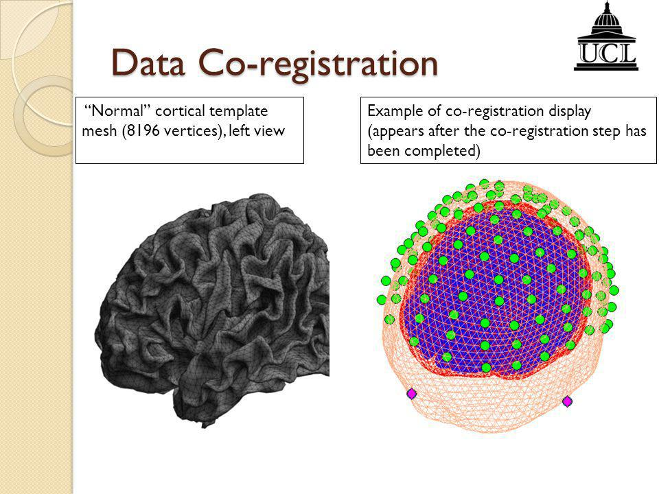 Data Co-registration Normal cortical template mesh (8196 vertices), left view.