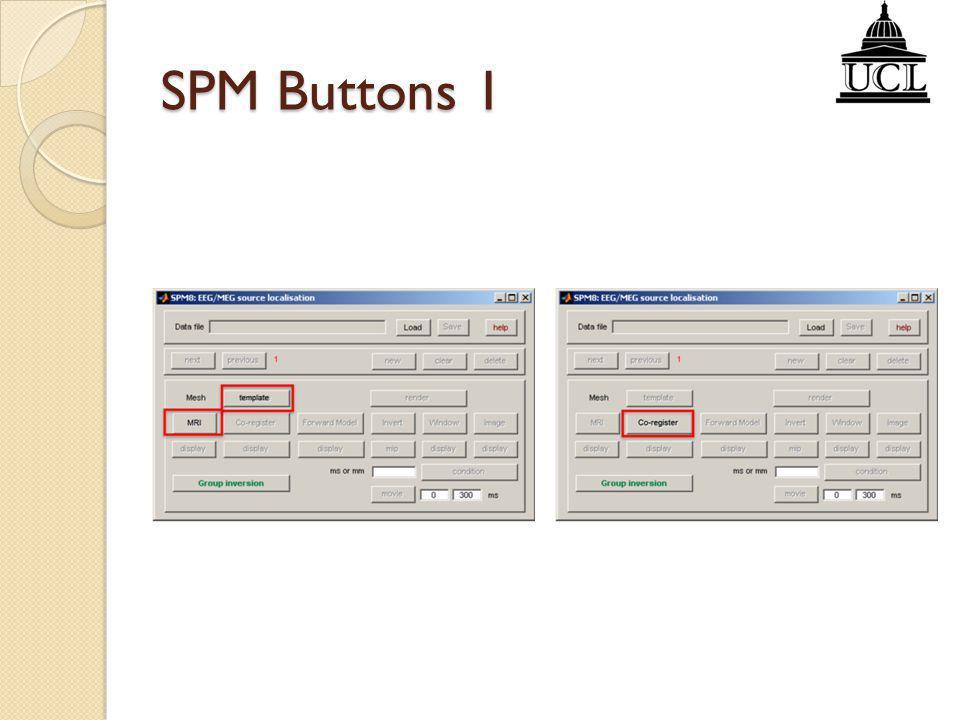 SPM Buttons 1