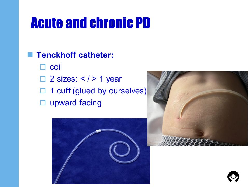 Acute and chronic PD Tenckhoff catheter: coil