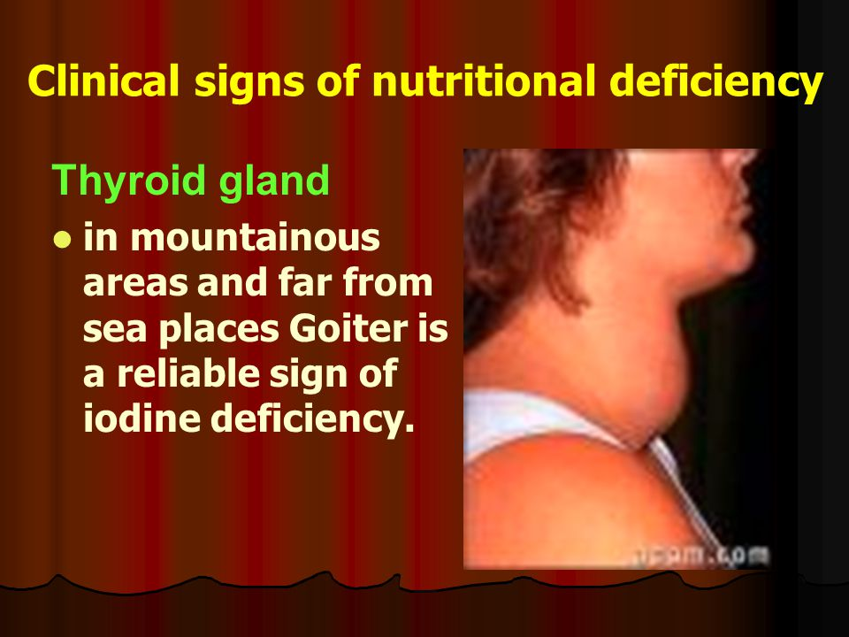 Clinical signs of nutritional deficiency