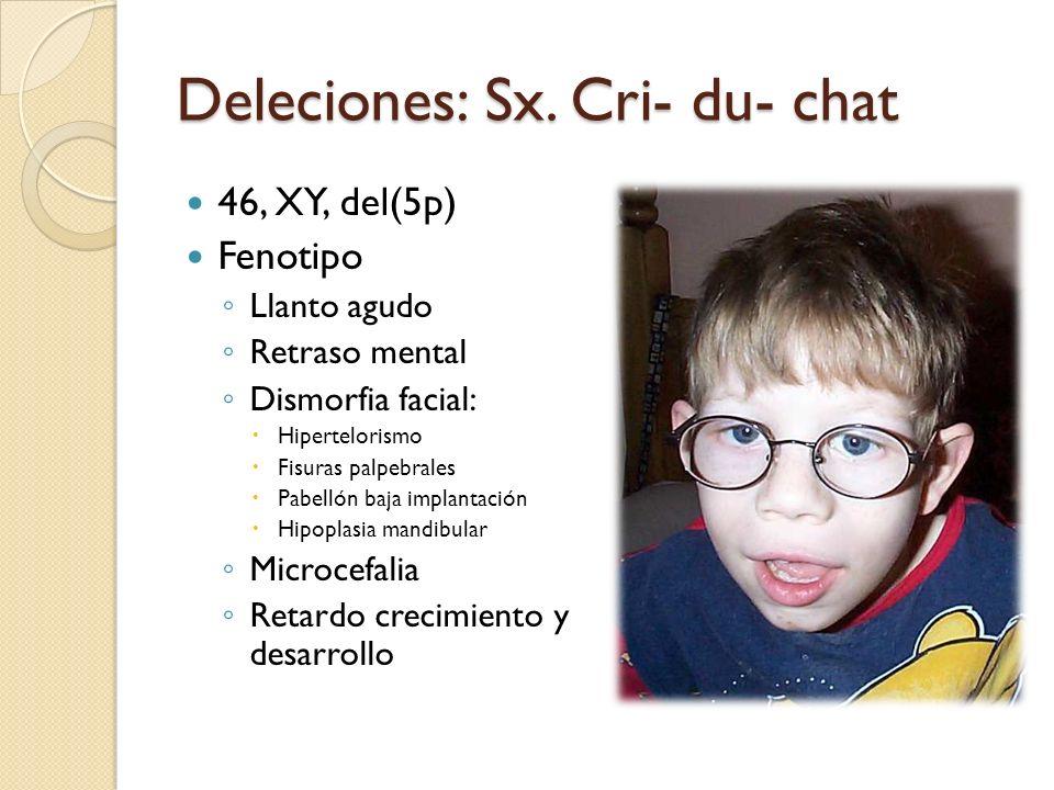 Deleciones: Sx. Cri- du- chat