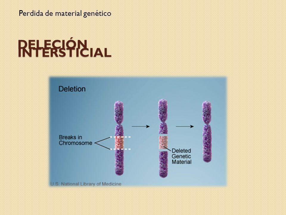 Deleción intersticial