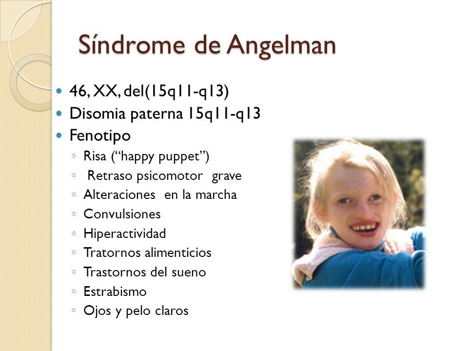 Síndrome de Angelman 46, XX, del(15q11-q13) Disomia paterna 15q11-q13