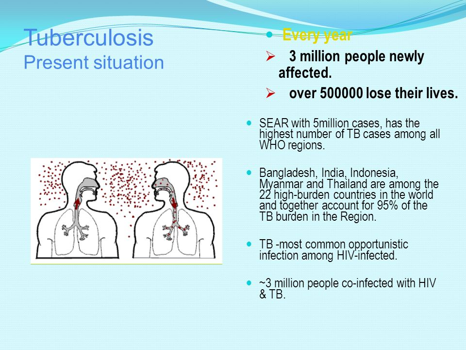 Tuberculosis Present situation