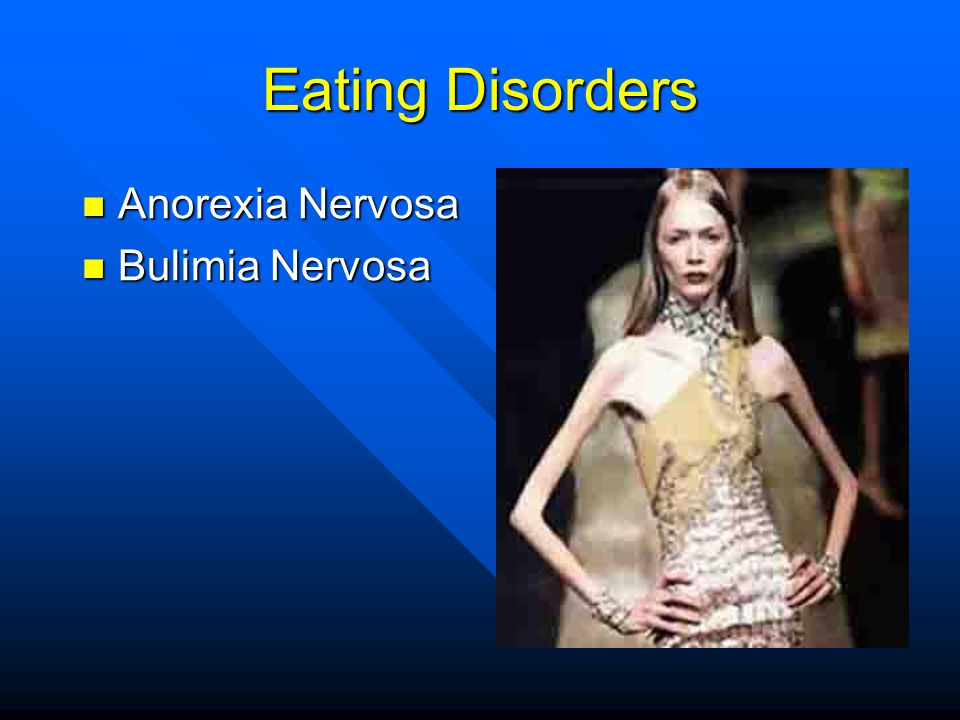 Eating Disorders Anorexia Nervosa Bulimia Nervosa