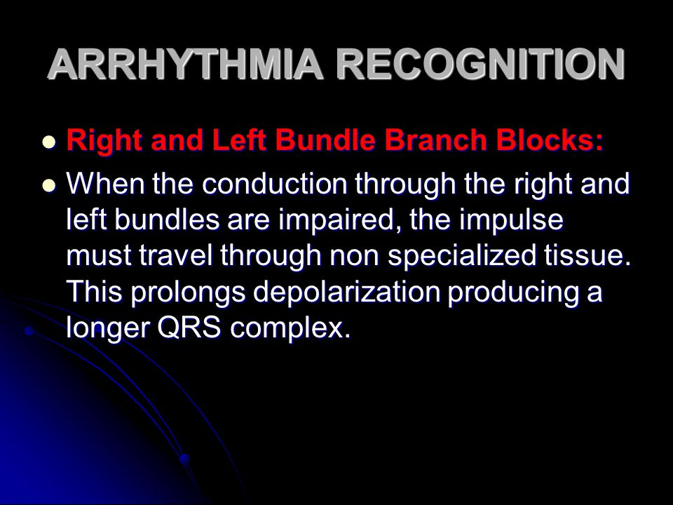 ARRHYTHMIA RECOGNITION