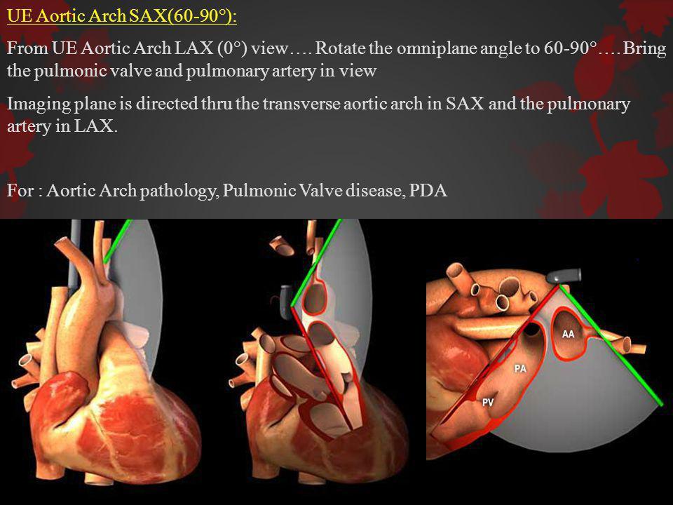UE Aortic Arch SAX(60-90°):