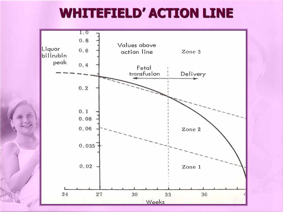 WHITEFIELD' ACTION LINE
