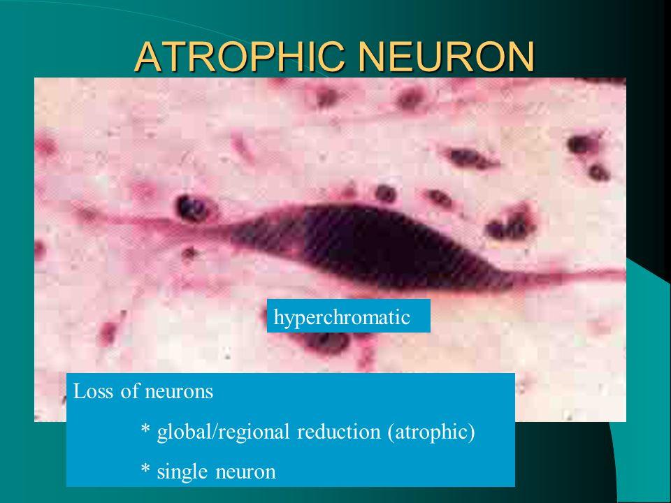 ATROPHIC NEURON hyperchromatic Loss of neurons