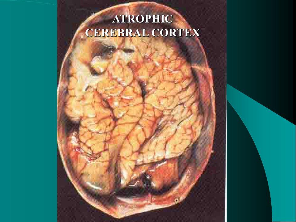 ATROPHIC CEREBRAL CORTEX
