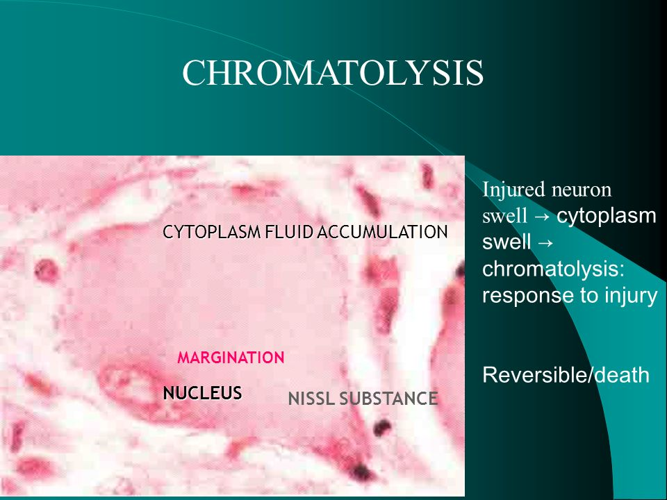 CHROMATOLYSIS Injured neuron swell → cytoplasm swell → chromatolysis: response to injury. Reversible/death.