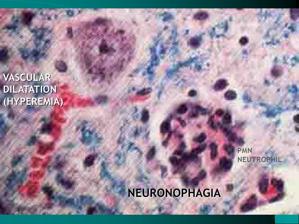 VASCULAR DILATATION (HYPEREMIA) PMN NEUTROPHIL NEURONOPHAGIA