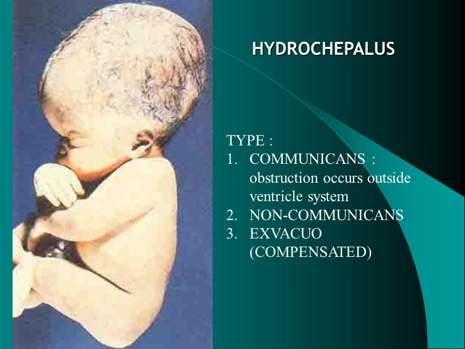 HYDROCHEPALUS TYPE : COMMUNICANS : obstruction occurs outside ventricle system.