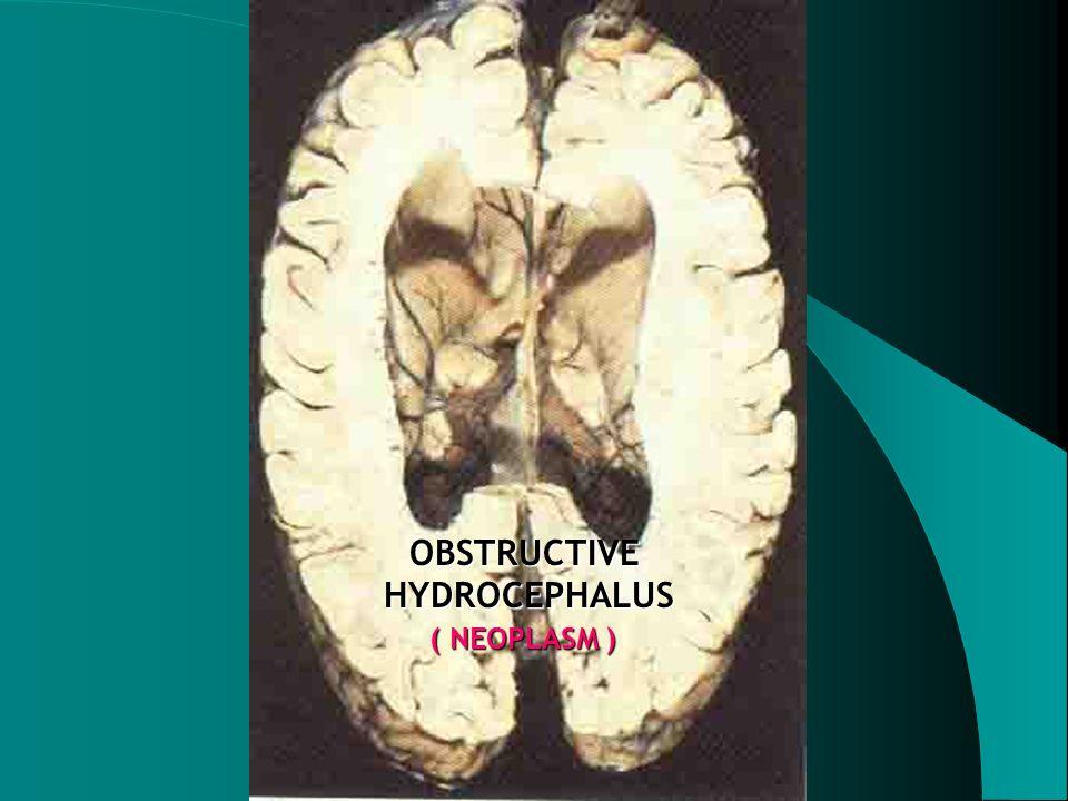 OBSTRUCTIVE HYDROCEPHALUS