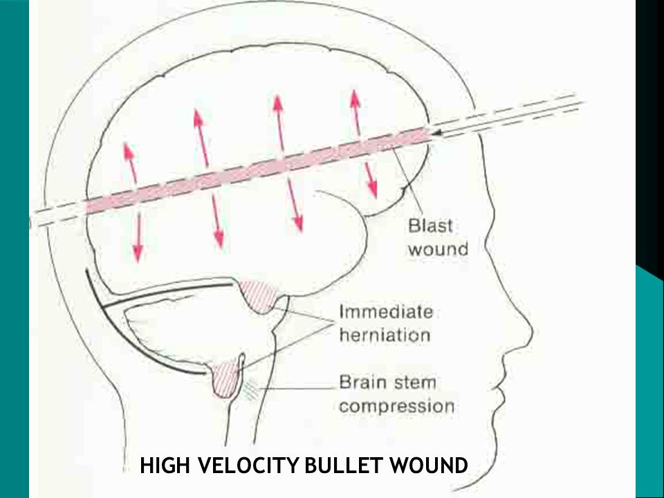 HIGH VELOCITY BULLET WOUND