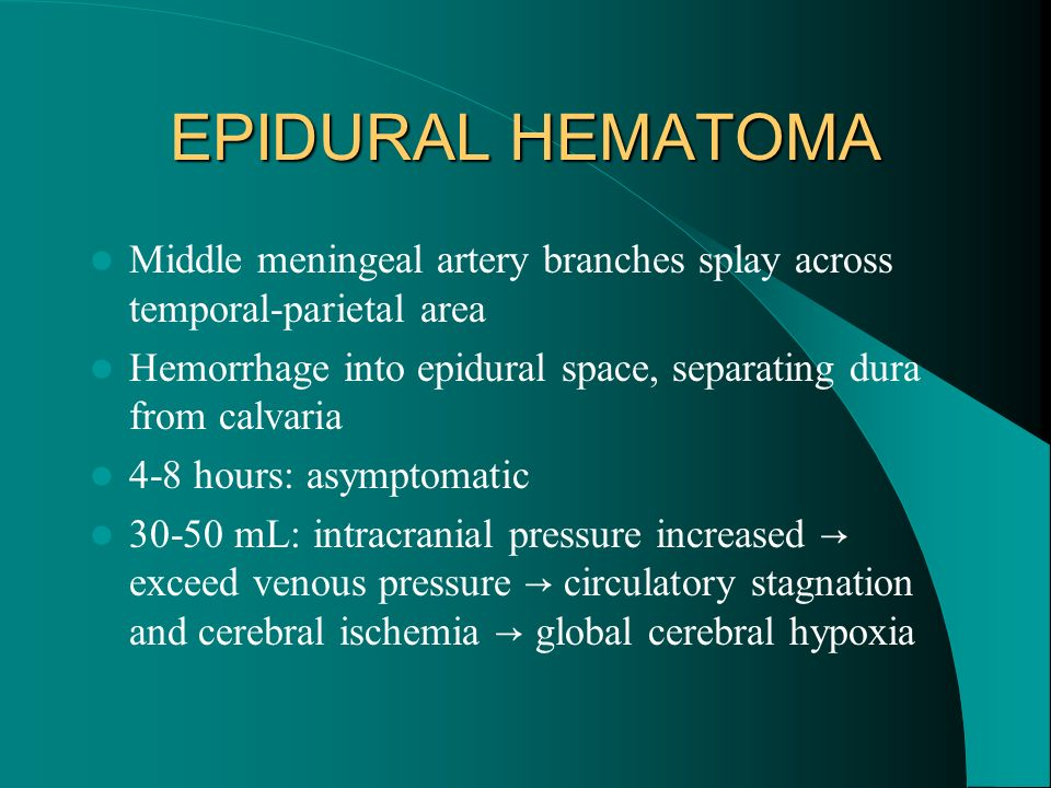 EPIDURAL HEMATOMA Middle meningeal artery branches splay across temporal-parietal area.