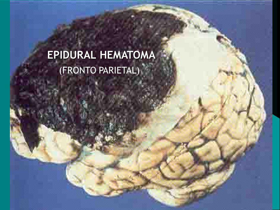 EPIDURAL HEMATOMA (FRONTO PARIETAL)