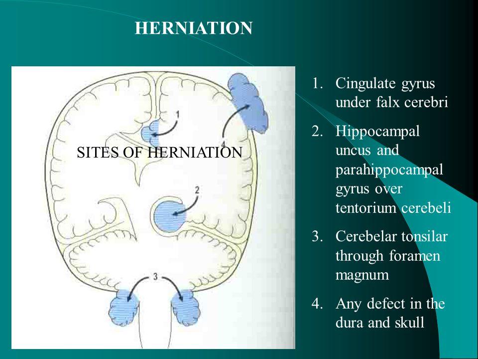 HERNIATION Cingulate gyrus under falx cerebri