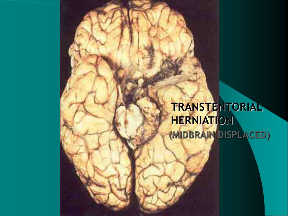 TRANSTENTORIAL HERNIATION (MIDBRAIN DISPLACED)