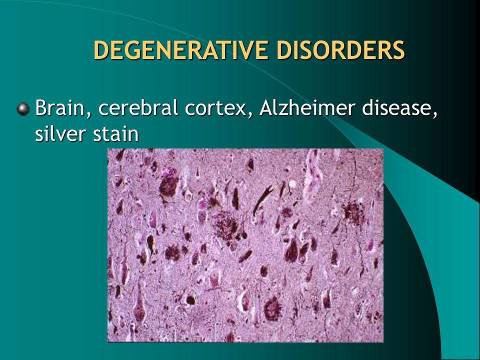DEGENERATIVE DISORDERS