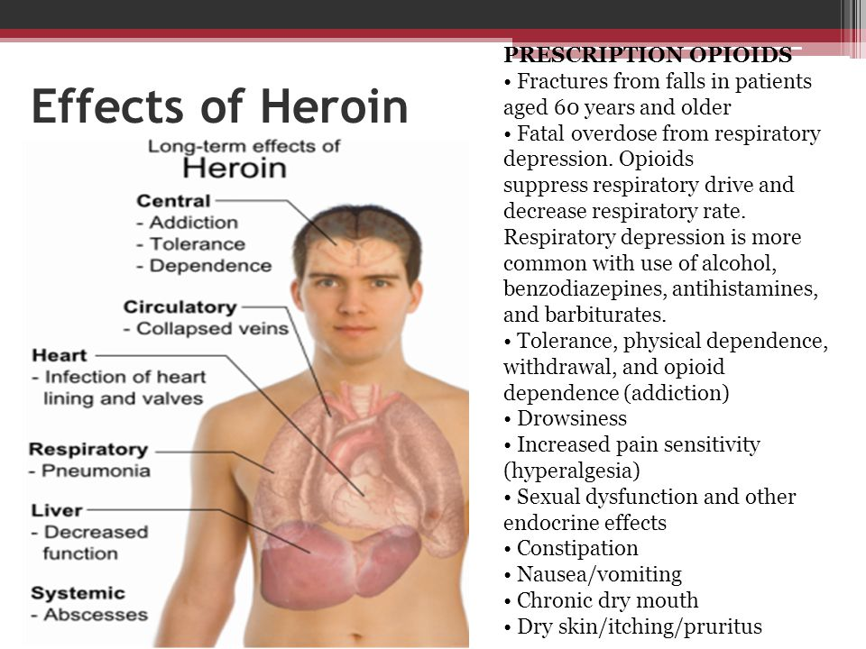 Effects of Heroin PRESCRIPTION OPIOIDS