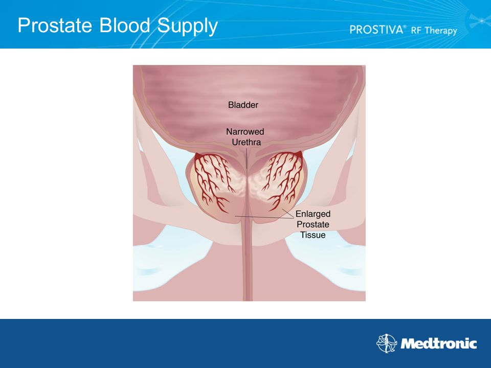 Prostate Blood Supply