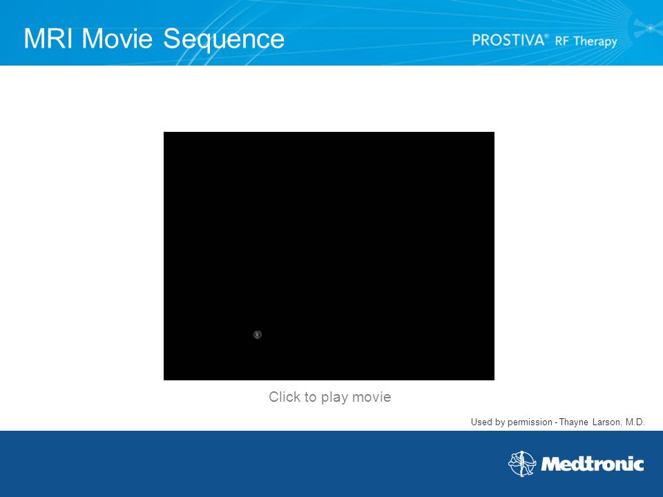 MRI Movie Sequence Click to play movie