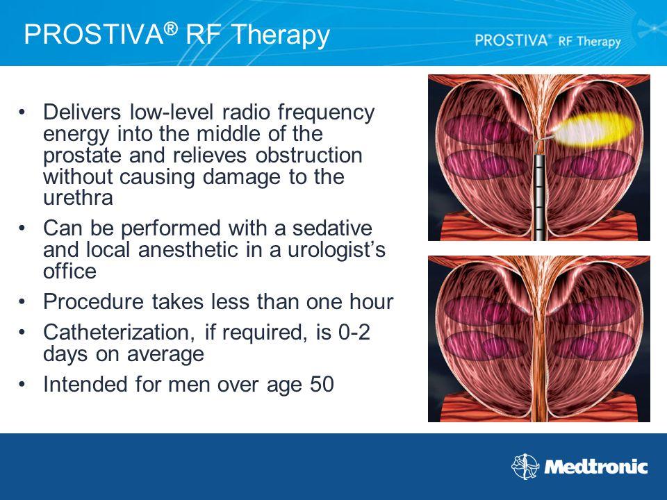 PROSTIVA® RF Therapy