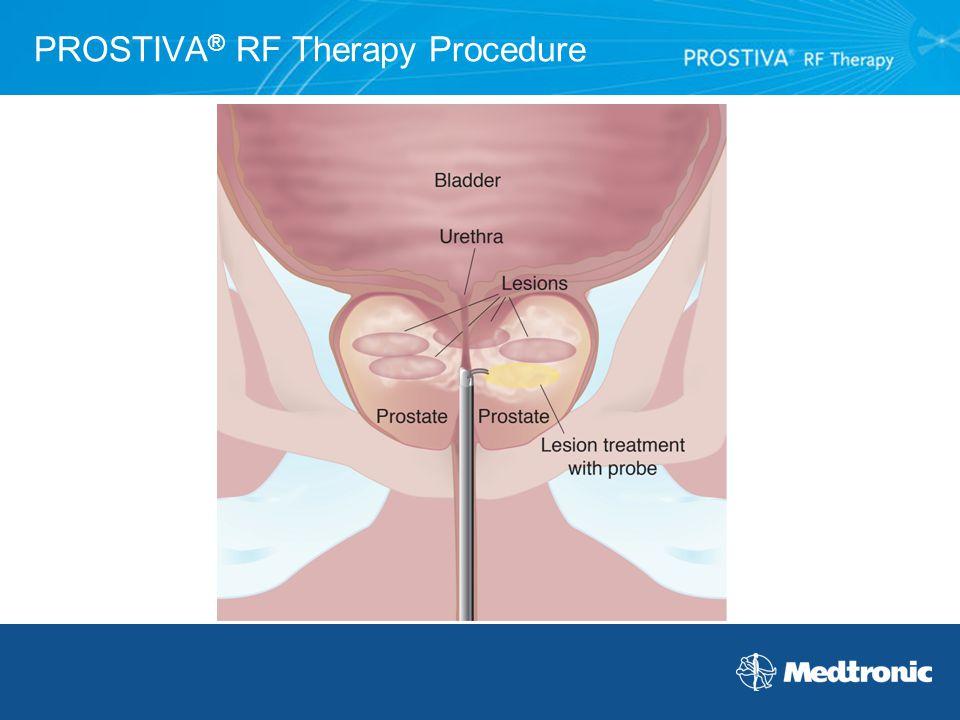 PROSTIVA® RF Therapy Procedure
