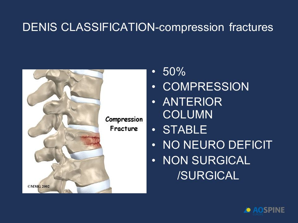 DENIS CLASSIFICATION-compression fractures