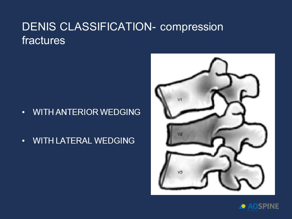 DENIS CLASSIFICATION- compression fractures