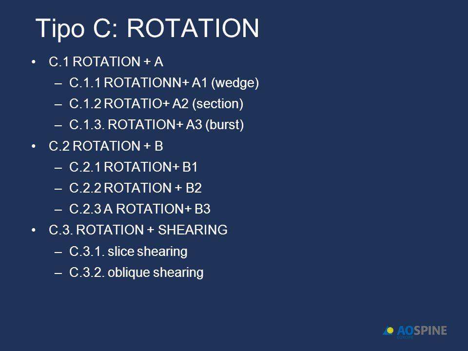 Tipo C: ROTATION C.1 ROTATION + A C.1.1 ROTATIONN+ A1 (wedge)