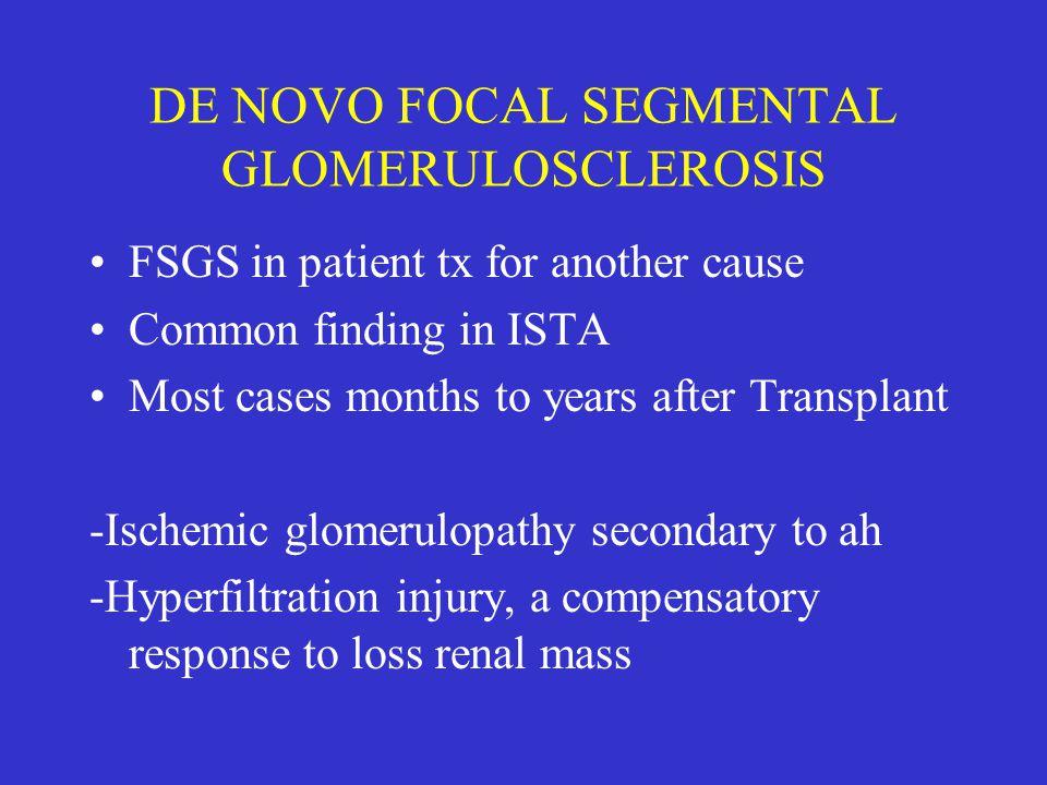 DE NOVO FOCAL SEGMENTAL GLOMERULOSCLEROSIS