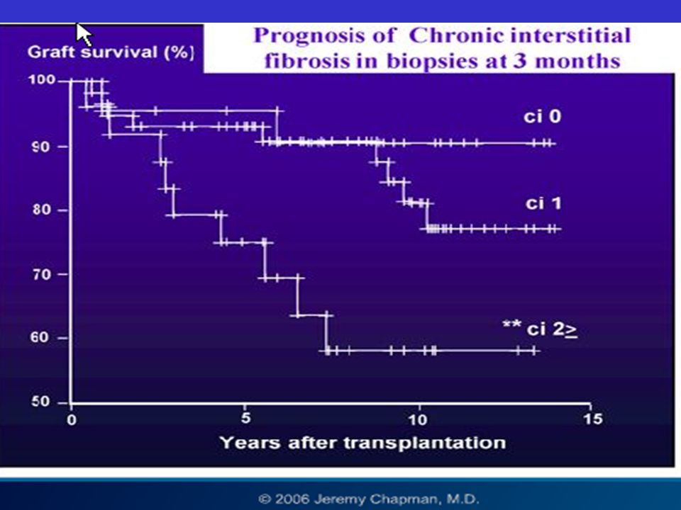 PROGNOSTIC IMPORTANCE OF HISTOLOGIC GRADING